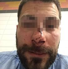 Imagen del policía tras haber recibido la paliza